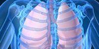 Симптомы саркоидоза легких