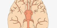 Повышенное внутричерепное давление - симптоматика и причины возникновения