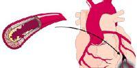 Что такое инфаркт сердца?