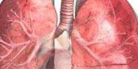 Что такое плеврит легких?