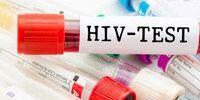 Признаки СПИДа у женщин
