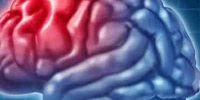 От чего бывает инсульт: основные причины