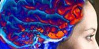 Как проявляется инсульт?