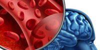 Как проявляется микроинсульт?