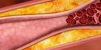 Что такое холестерин и как его лечить