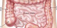 Сильно болит кишечник: причины, что делать