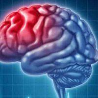 От чего бывает инсульт у человека